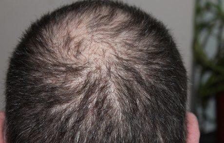 הסיבות שבגללן אתה סובל מנשירת שיער