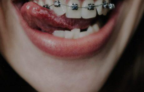 שיטות חדשות ליישור שיניים אצל מבוגרים וילדים
